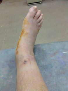 This is where the surgeon entered to fasten the 'tie' on the tibia side; just two stitches.