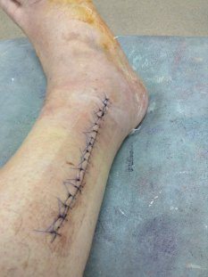 An impressive scar with 17 stitches.